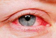 راهکاری برای جلوگیری از خشک شدن چشم
